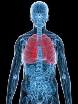 fibrosi_polmonare