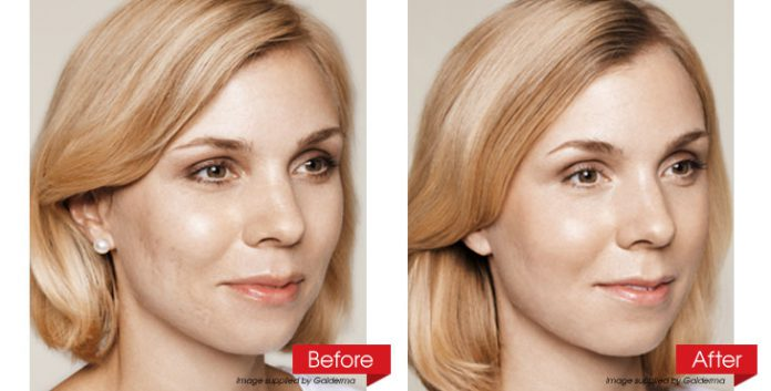 face-before-after-revised-2